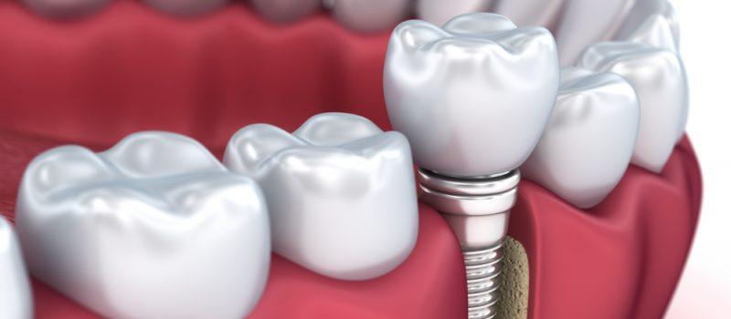dental implants procedure woodbridge on